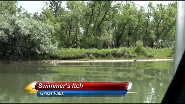 Swimmer 39 S Itch News Sports And Weather